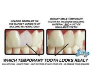 Набор временных зубов-виниров Smile Temporary Toot